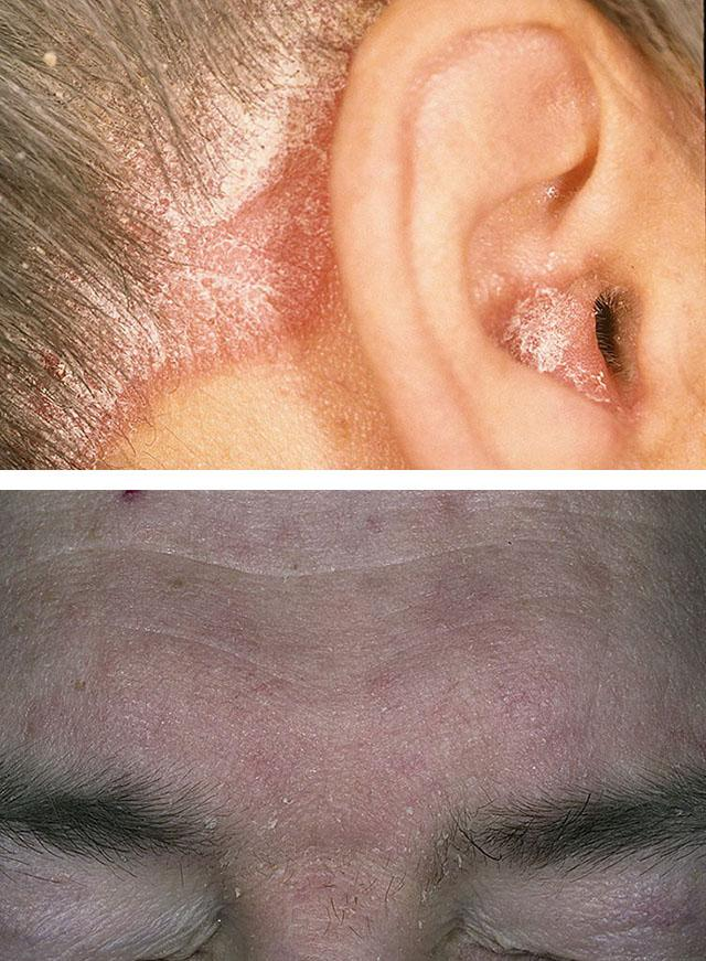 1. Псориаз волосистой части головы 2. Себорейный дерматит