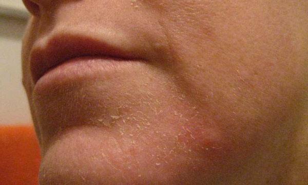Почему шелушится кожа на подбородке у женщины