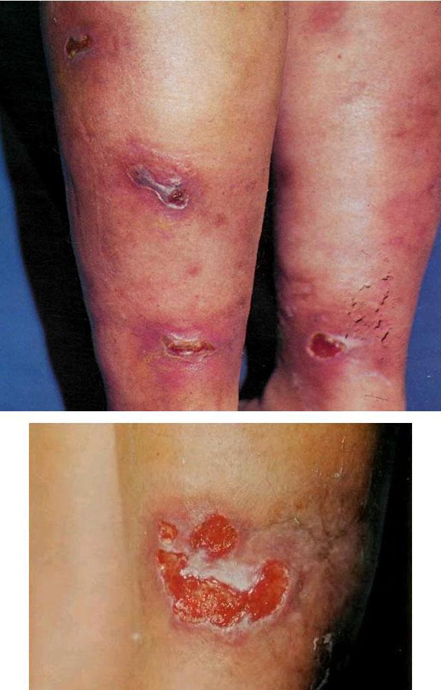 Индуративный (уплотненный) кожный туберкулез