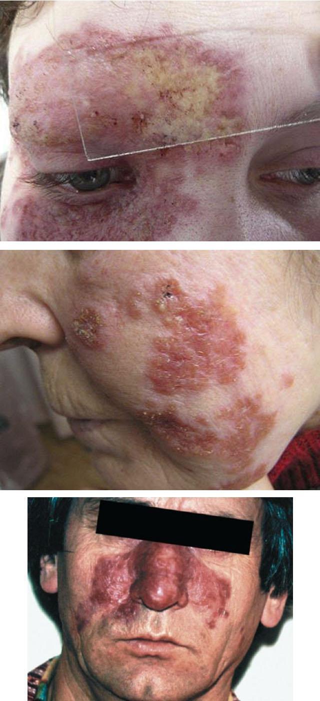 Люпоидный туберкулез кожи