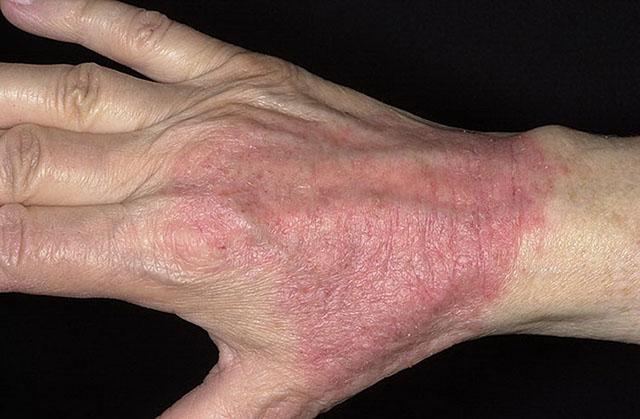 дерматоз на руках