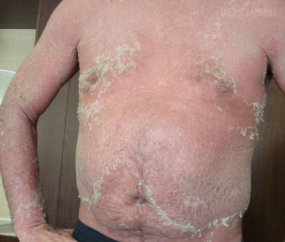 фото дерматоза