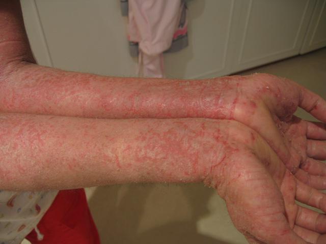 симптомы дерматоза