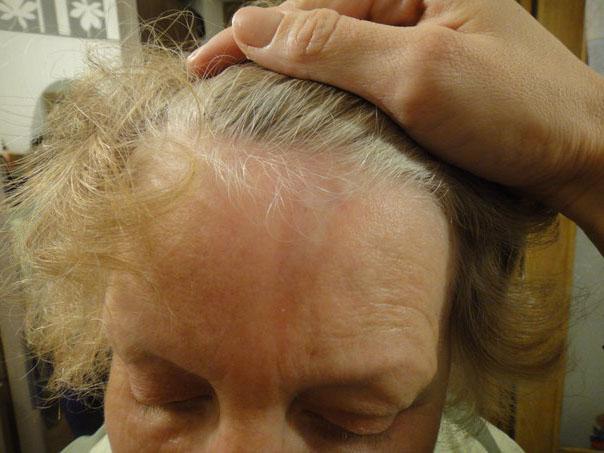 bolezn-sistemnaja-sklerodermija