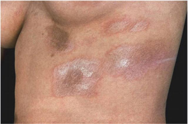 Склеродермия на лице