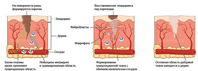 Процесс формирования рубцовой ткани
