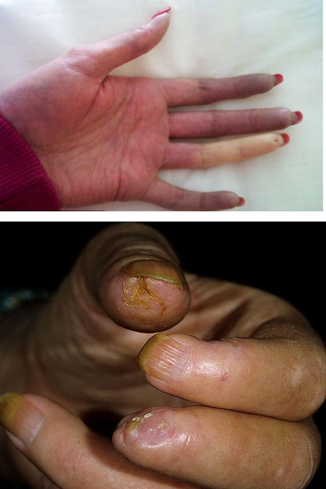 priznaki-sistemnoj-sklerodermii