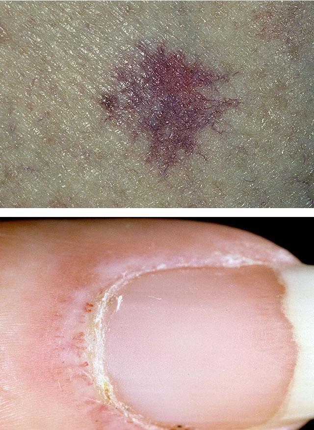 projavlenija-sistemnoj-sklerodermii
