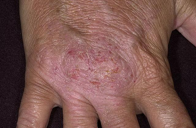 Дерматозы или аллергия на ладонях