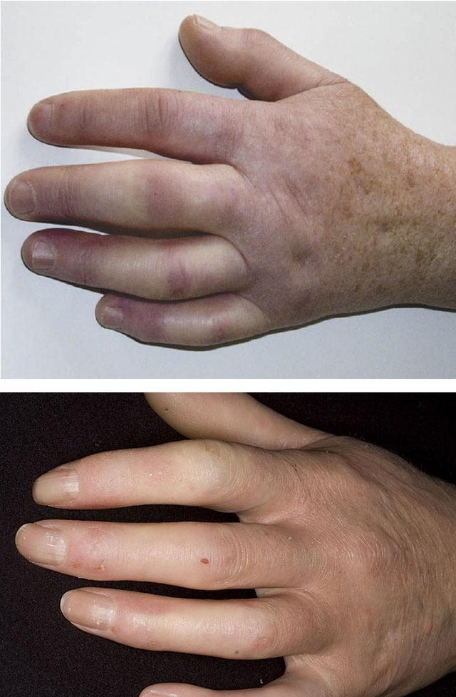 simptomy-sistemnoj-sklerodermii