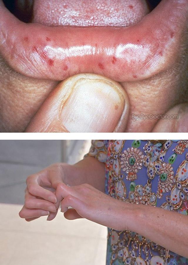 Проявления диффузной склеродермии