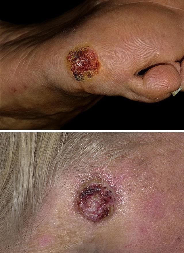 Лучевая терапия при плоскоклеточном раке легкого — LiveAcademy
