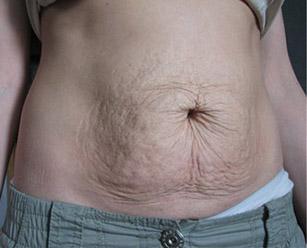 Кожа на животе после похудения