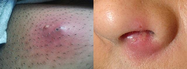 кожный абсцесс