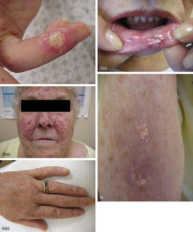 Склеродермия кожи фото