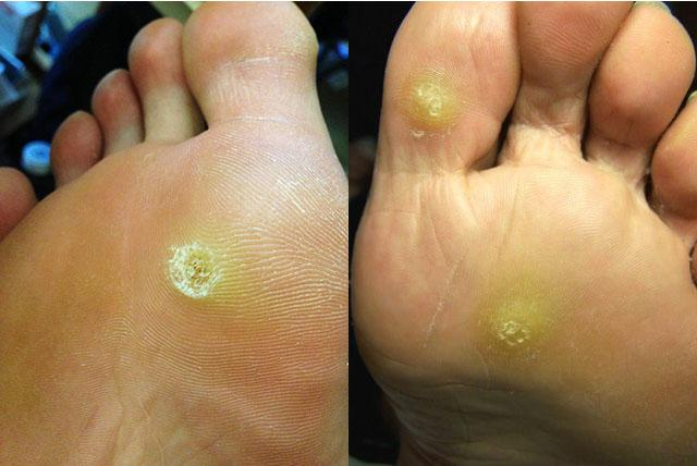 Сухой мозоль на пальце ноги