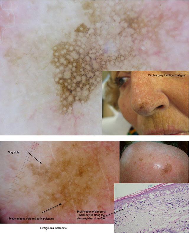 Как выглядит начальная стадия рака кожи с фото, симптомы и признаки, виды, лечение