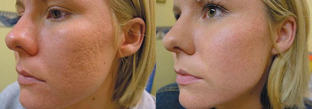 Как убрать шрамы от прыщей на лице и рубцы после акне в домашних условиях народными средствами