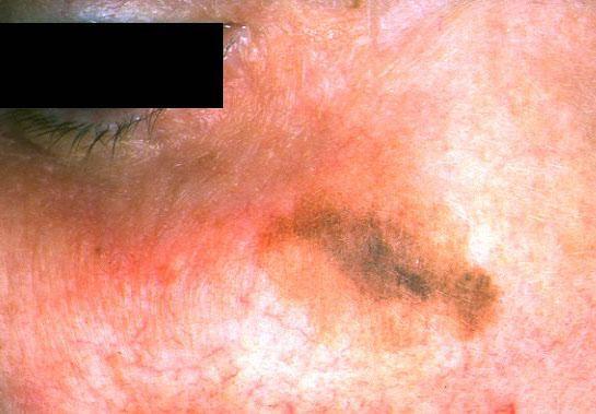 Рак кожи головы начальная стадия фото