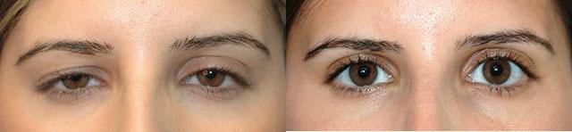 Фото до и после коррекции опущения век