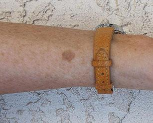 Лечение рака кожи - Медицинский портал EUROLAB