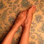 Как выглядит варикозный (венозный) дерматит: как помочь ножкам и не запустить болезнь