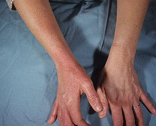 Рожистое воспаление кожи (рожа): на ноге, руке, лице