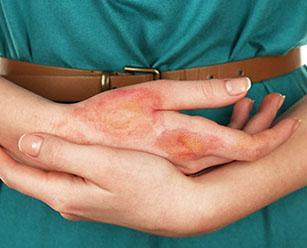Эксфолиативный дерматит у детей