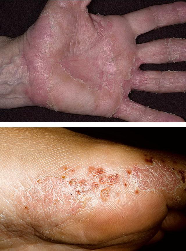 Дерматит – причины, симптомы дерматита, диета. Сухой, зудящий, инфекционный, ушной и пищевой дерматит
