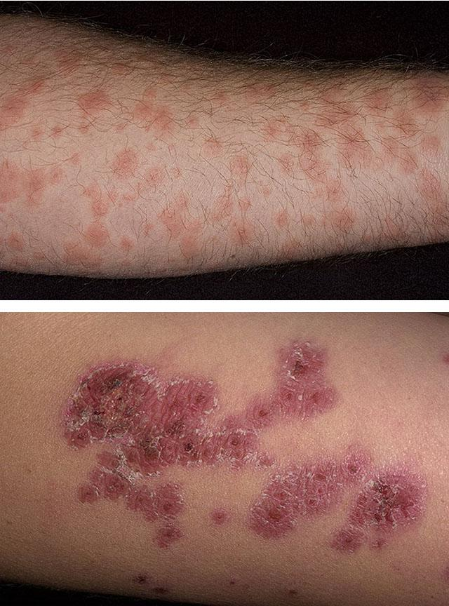 чем отличается дерматит от дерматоза