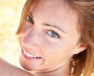 Удаление пигментных пятен на лице лазером. Почему на лице появляются пигментные пятна?