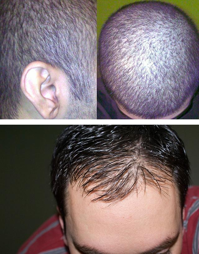 Как остановить выпадение волос у мужчин резкое очаговое выпадение пятнами