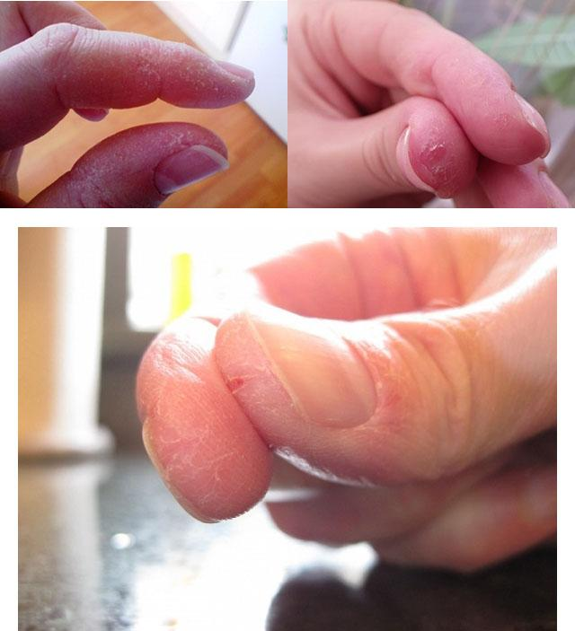 Лопнула кожа между пальцами руки чем лечить