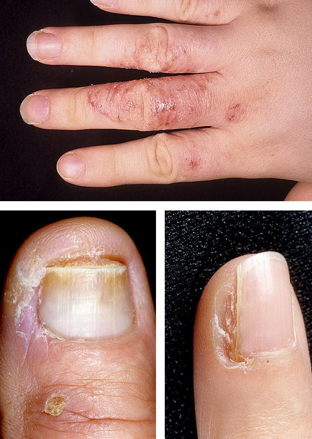 Треснула кожа между пальцами. Причины почему треснула кожа между пальцев