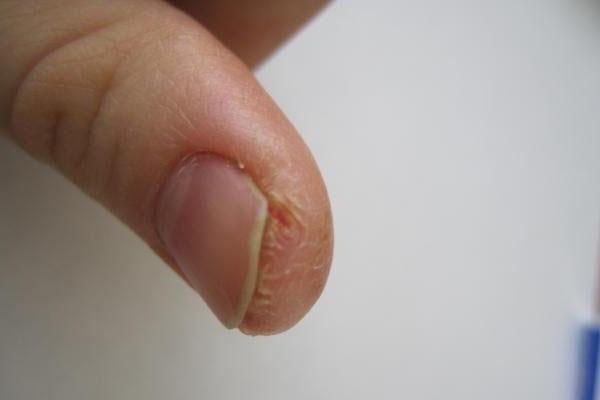 Трещины возле ногтей