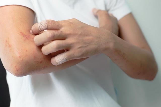 Простой хронический лишай ограниченный нейродермит