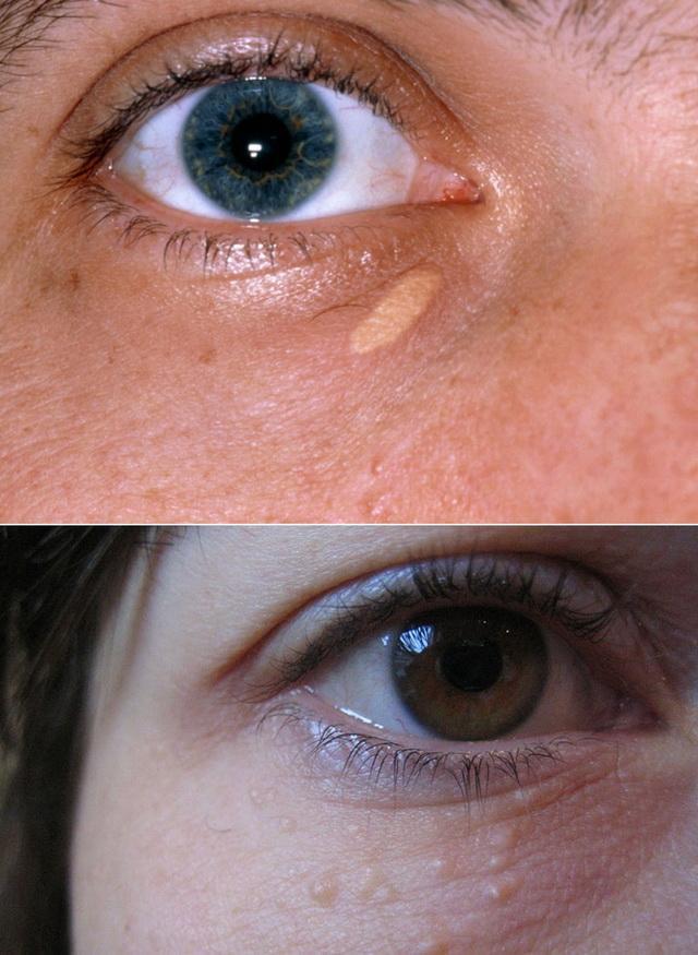 Ксантоматозные бляшки на коже фото