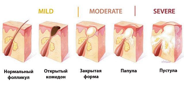 Гнойные прыщи на теле причины и лечение
