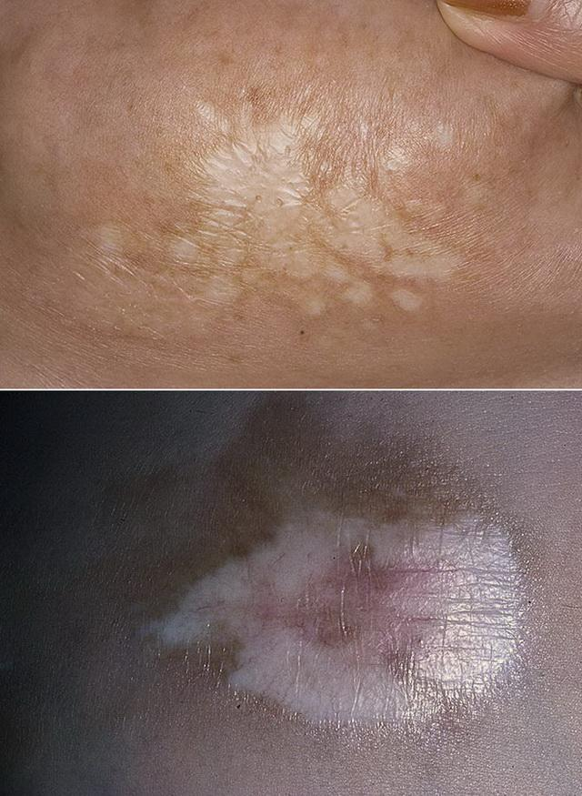 Склероатрофический лихен - лечение и прогноз у девочек