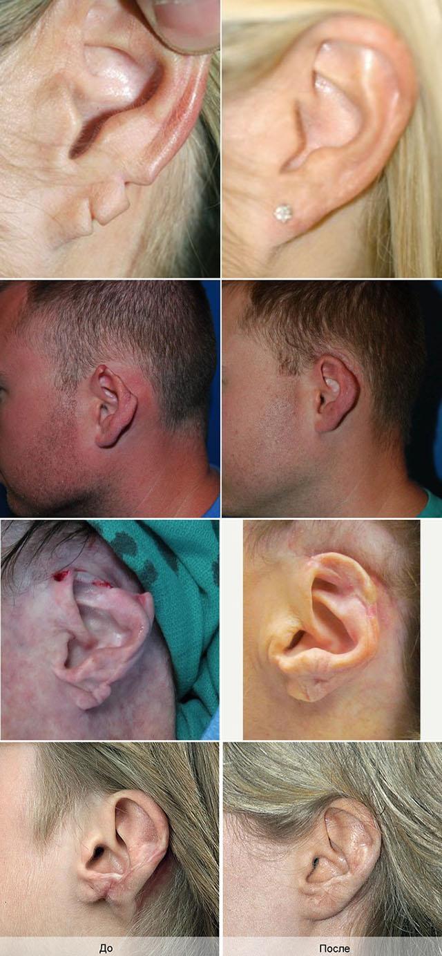 Дефекты ушной раковины различной степени сложности