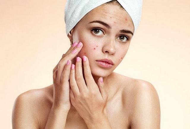 После родов прыщи и сыпь на лице причины появления акне на подбородке и лечение