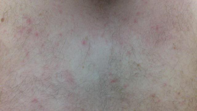 Гормональные прыщи на лице: что такое, как выглядят, причины появления сыпи, как лечить, профилактика