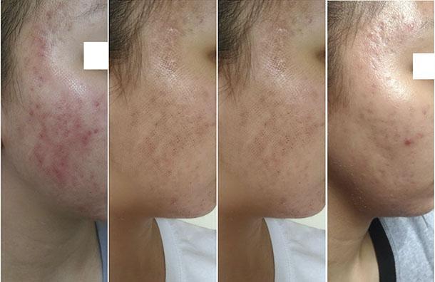 Уход за кожей после шлифовки рубцов thumbnail