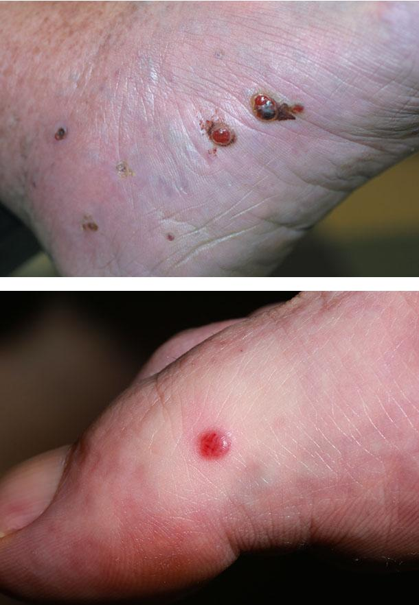 Элементы сыпи при геморрагической саркоме