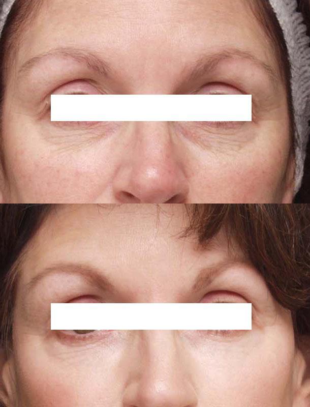 Пилинг гликолевой кислотой вокруг глаз