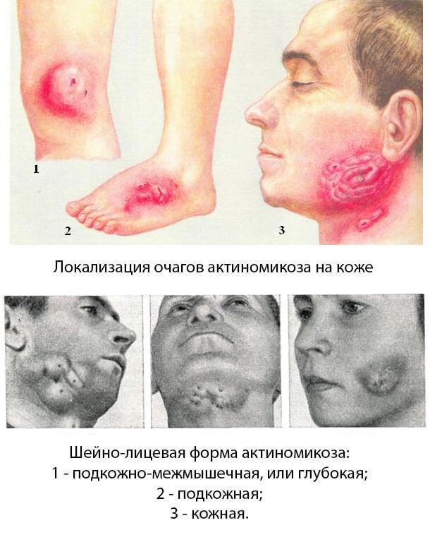 Актиномикоз: причины, симптомы и лечение в статье миколога Бурова С. А.