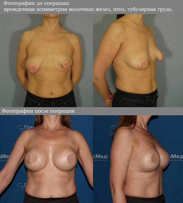 Пластическая операция по устранению асимметрии груди