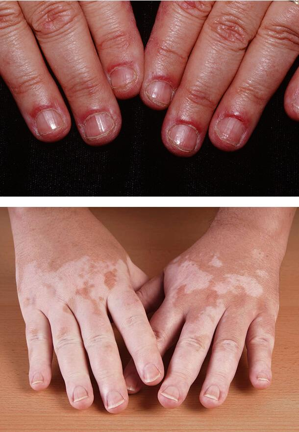 Первые признаки сахарного диабета на коже thumbnail
