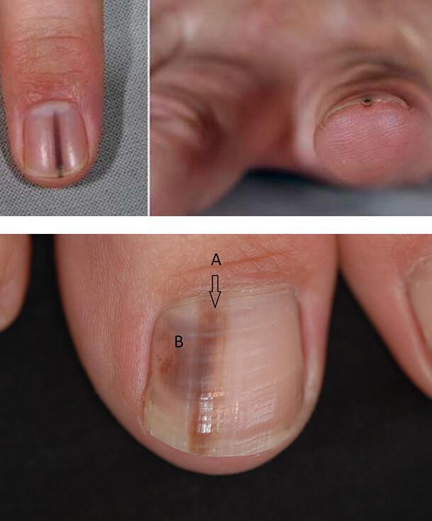 Может ли грибок ногтей привести к раку