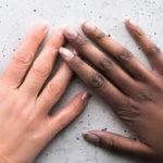 Рак ногтя – с таким «маникюром» только к онкологу